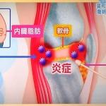 膝の下の脂肪で関節液が溜まる理由になる