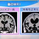 正常圧水頭症のMRIの特徴と脳脊髄液が前頭葉を圧迫