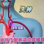左手、腕を上げるで2回の失神の原因は鎖骨下動脈の狭窄・閉塞