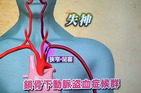 病名は鎖骨下動脈盗手症候群