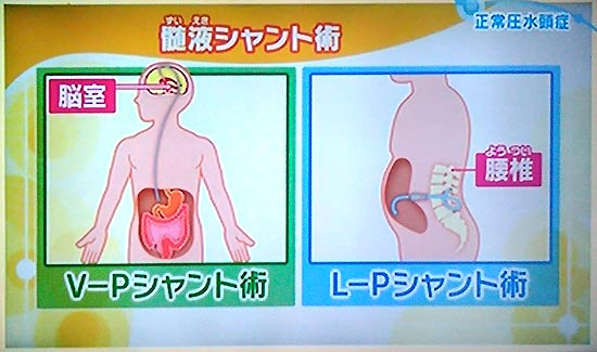 治療は髄液シャント術、直径2mmの管を入れて排除
