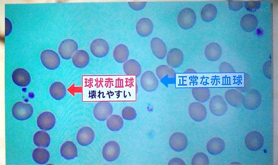 球状赤血球症