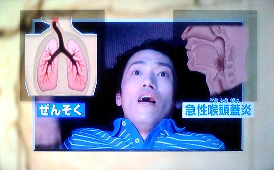 成田発ハワイ行き飛行機で息が苦しいは過換気症候群、ドクターGの答え