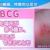 >※BCG注射を打った後が赤く腫れてかさぶたができる。