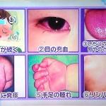 孫の突然の高熱と腹痛の原因は川崎病だった。首を触ると痛い