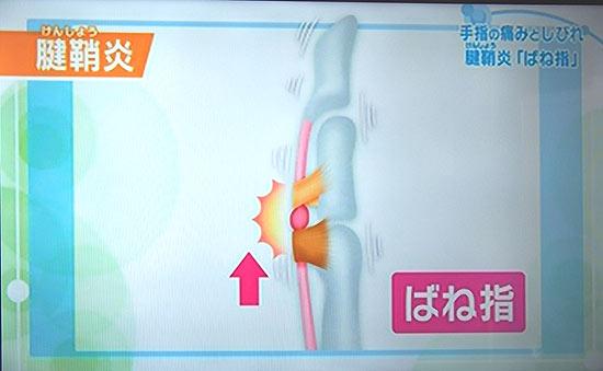 腱鞘炎のひとつ、バネ指の特徴的な症状