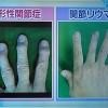 指の変形性関節症と関節リウマチの違い