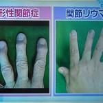 しびれ指の変形性関節症と関節リウマチの違い