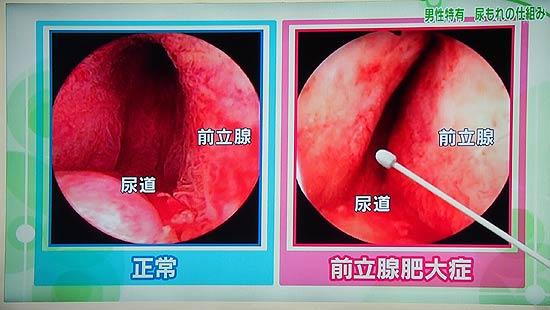 尿道の内視鏡画像