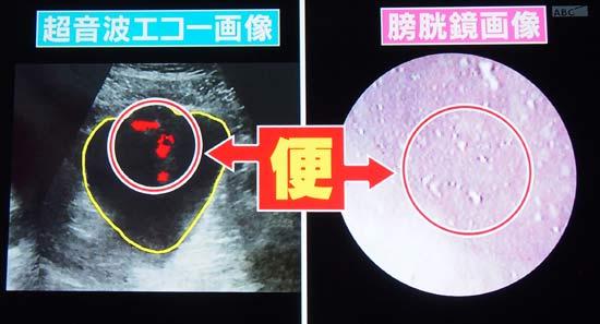 膀胱の中を浮遊する粒状の遺物は便でした