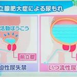 前立腺肥大の尿漏れ。尿道の内視鏡、前立腺エコーの画像