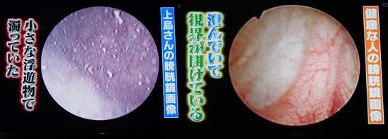 問題の患者の膀胱鏡画像は小さな浮遊物で濁っていた
