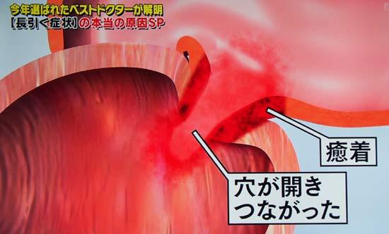 S状結腸の炎症が大腸の裏側から膀胱に癒着し穴が開き繋がり瘻の状態
