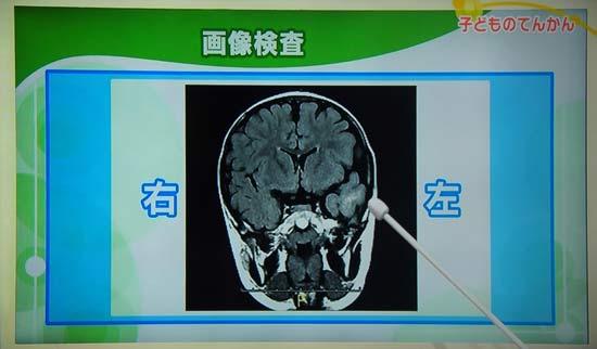 画像検査 MRI CT 脳の傷や障害を画像で確認
