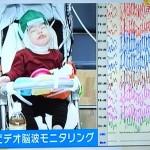子供のてんかん発作を治療する理由