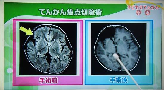 てんかん焦点切除術の画像