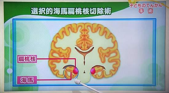 選択的海馬扁桃核切除の画像 部分発作でも側頭葉