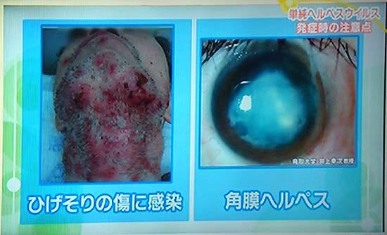 写真:ヘルペスが髭剃りで傷に感染、角膜に感染