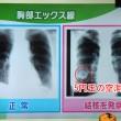 結核はレントゲン画像に5円玉の空洞病が特徴