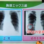 結核の発病と診断、検査と治療、発病予防対策
