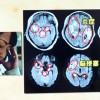 頭部MRIで感染性心内膜炎で違和感がある
