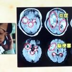 意識がない脳梗塞で抗生剤かステロイドパルスか?自発呼吸無し、対光反射消失