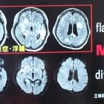 脳MRIでD+Fでお願いしますとは?