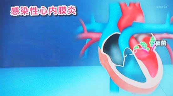 感染性心内膜炎は血液の中にばい菌 心臓の膜や弁について 機能低下