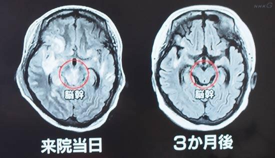 SLEで脳梗塞。3か月後に脳の炎症と浮腫は収まった