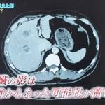 肝膿瘍の原因は大腸がん。肝臓への道は肝動脈、胆管、門脈の3つ