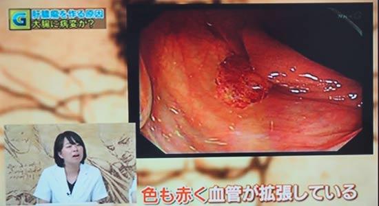 大腸ポリープ 色も赤く 血管が拡張している