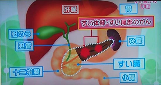 膵体部、膵尾部のがんの手術の場合