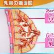 小葉+乳管=乳腺