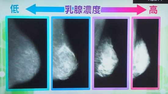 若い人の乳腺の写真を見ると全部真っ白なので見つけられない