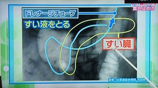 膵臓がん確定にはドレナージで膵液を採取して細胞診