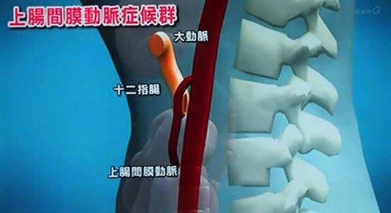 胃と小腸の間にある十二指腸は大動脈と、そこから分岐する上腸間膜動脈の間にある