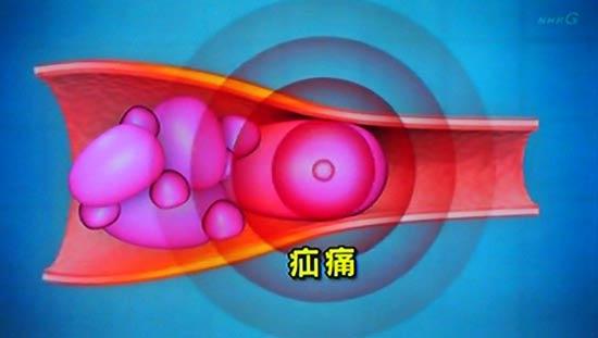 疝痛・せんつう 体の中で管に詰まると起こる