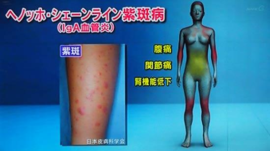 ヘノッホシェンライン紫斑病
