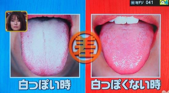 舌が白っぽいときと、そうでないときの差は体の異常を示している?