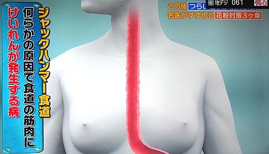 何らかの原因で食道の筋肉に痙攣が発生する病気