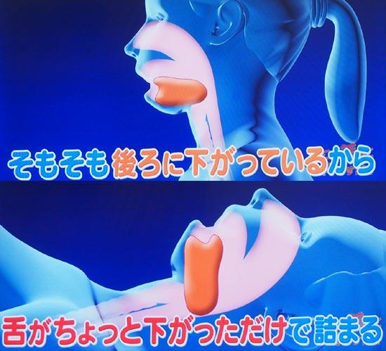 下の顎、顎が小さい人は舌が後ろにスペースがない