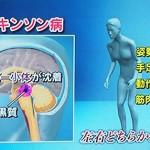 パーキンソン病の初期症状は体が重い、肩がこる、震え、歩行困難、北野病院