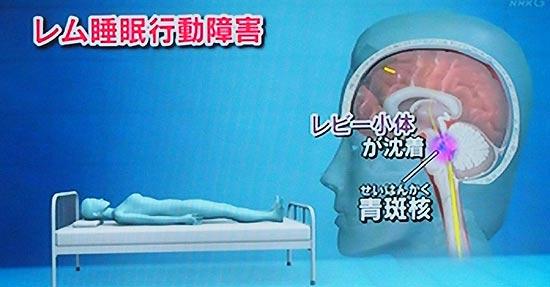 通常夢の中で体を動かしていても、脳の青斑核が遮断しているため体が動くことはない