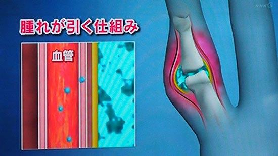 関節に炎症が起きた場合痛みに特徴がある