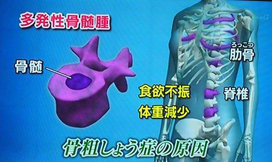 多発性骨髄腫
