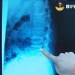 骨粗しょう症 2か所腰椎圧迫骨折