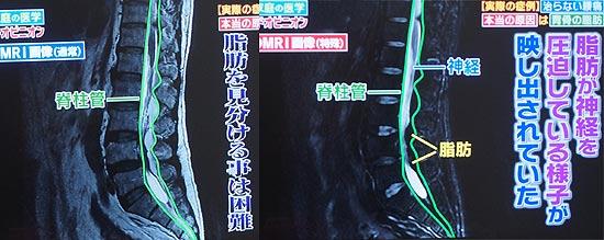 MRIで発見しにくい硬膜外脂肪腫症は硬膜外の脊柱管に脂肪が溜まり神経を圧迫、強い痛みを引き起こす病気。
