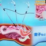 大腸がんの手術がうまい熟練した医師
