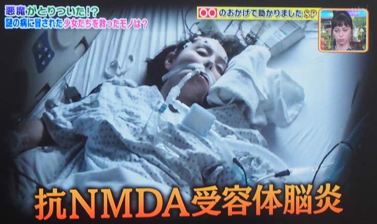 抗NMDA受容体脳炎 2007年に発見