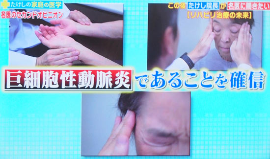 巨細胞性動脈炎の症状は顎がだるい、薬が効かない頭痛、発熱、右肩の痛み、物が二重
